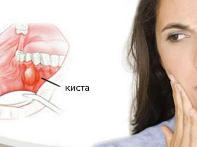 Можно ли спасти зуб с кистой от удаления?